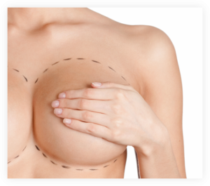 Breast Implant Pain due to Capsular Constracture