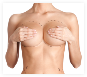 Capsular Contracture without surgery